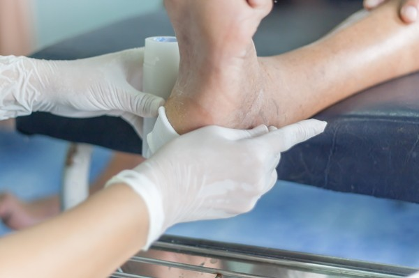 The Agony of the Feet: Prevention and Management of Diabetic Foot Ulcers