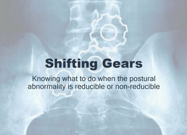 Shifting Gears -Knowing what to do when the postural abnormality is reducible or non-reducible