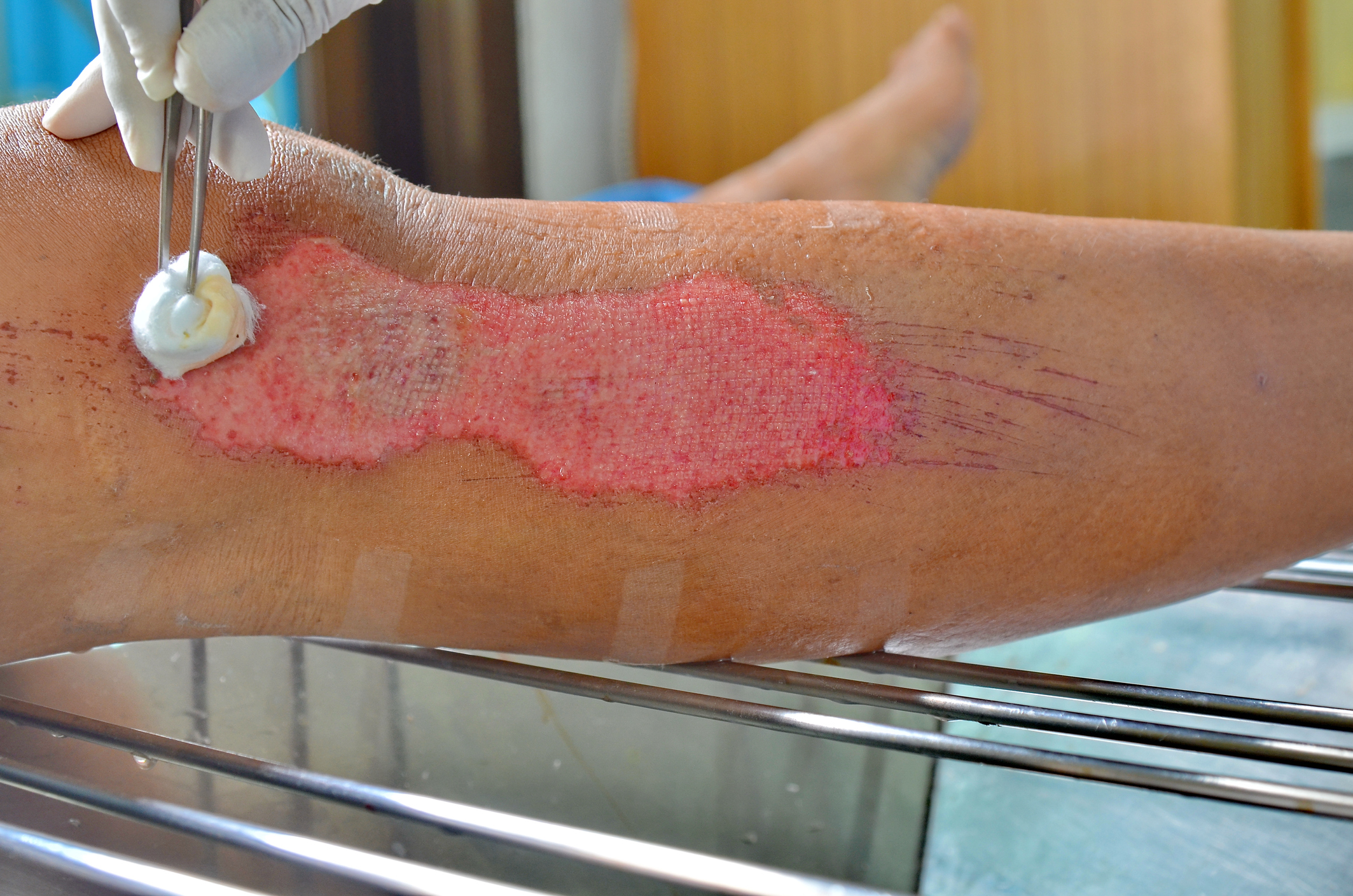 Wound Assessment and Documentation