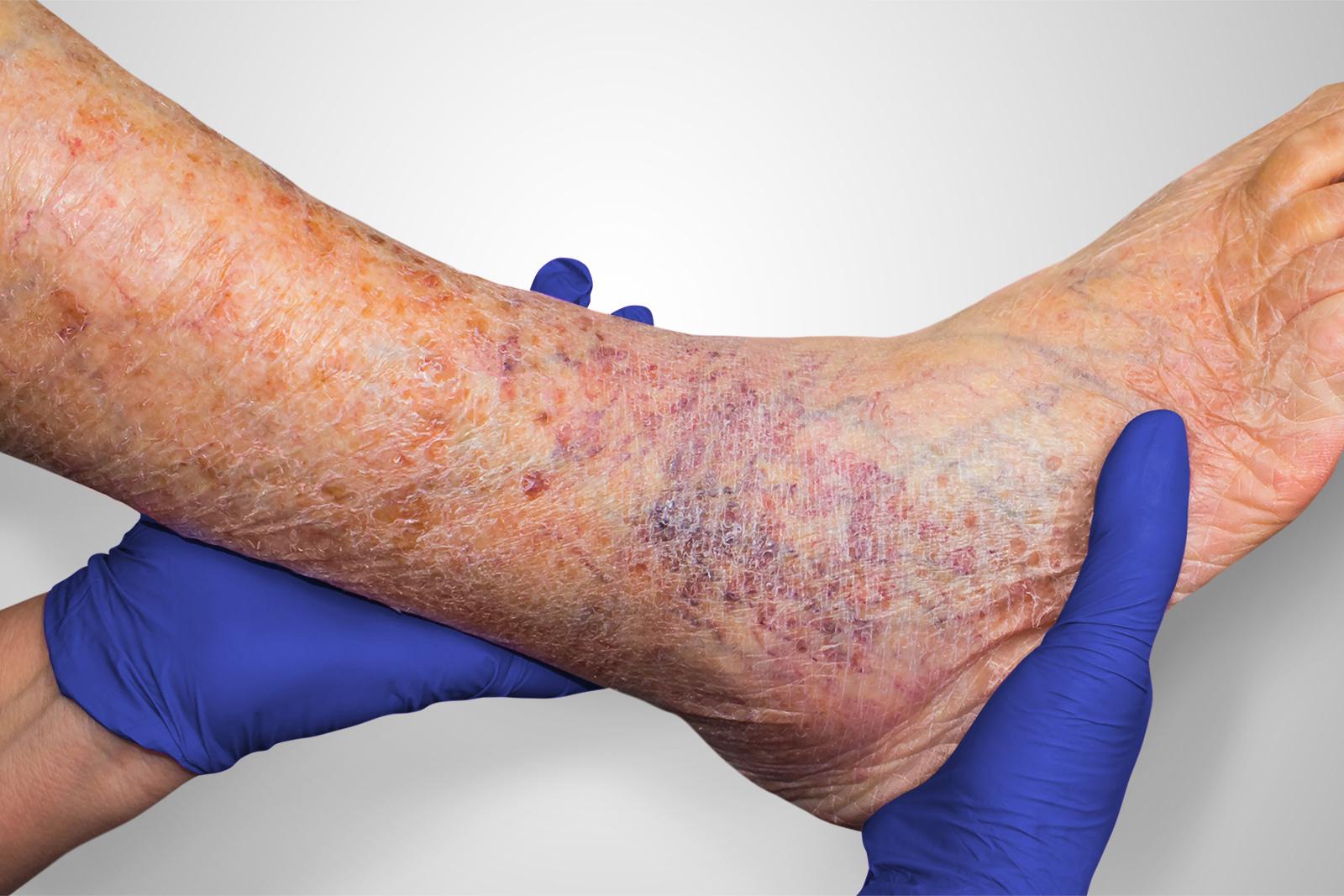 Venous Leg Ucler
