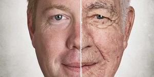 Aging & Disease