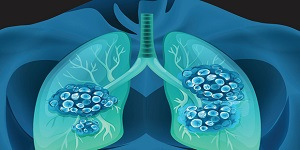 COPD & Lungs 2020