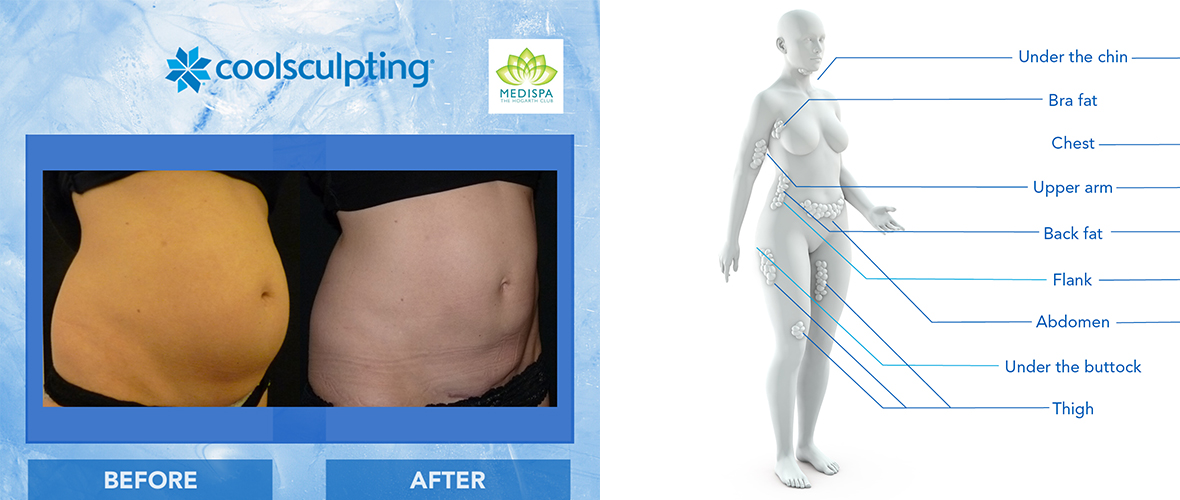 Coolsculpting blog banner