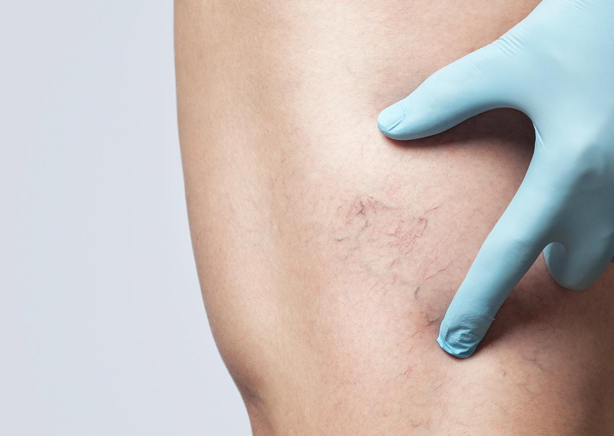 Leg veins box 1