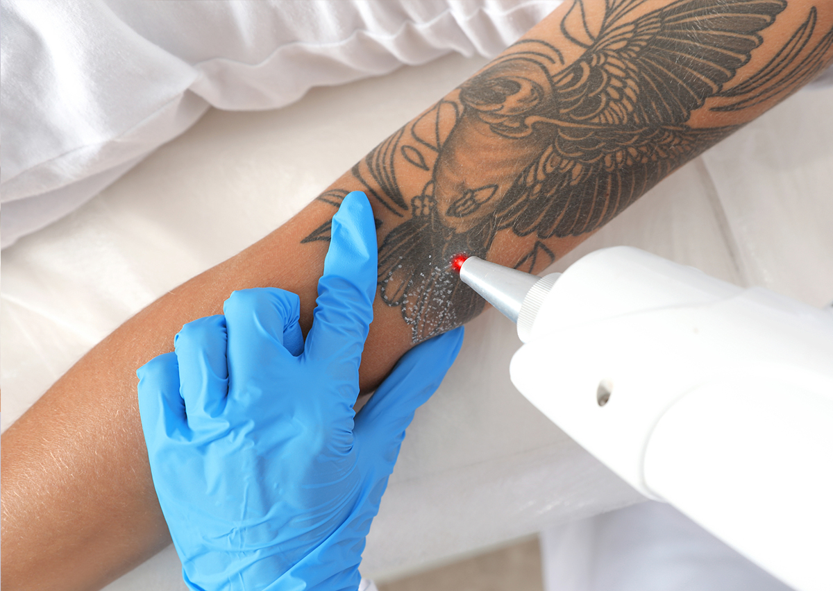 Laser tattoo removal box 1