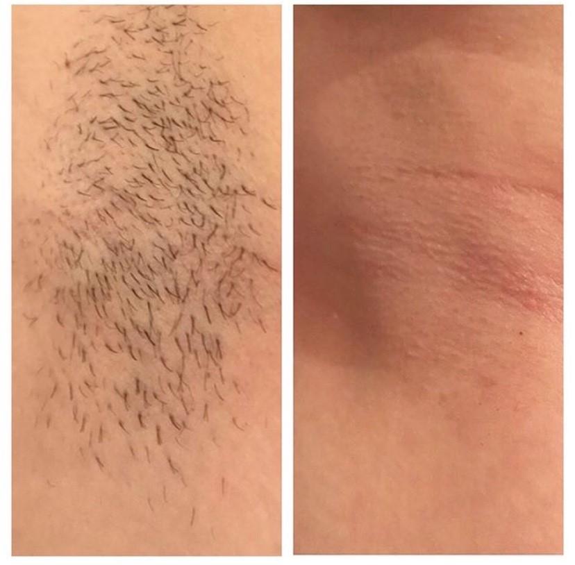 laser hair removal armpit the Hogarth medispa