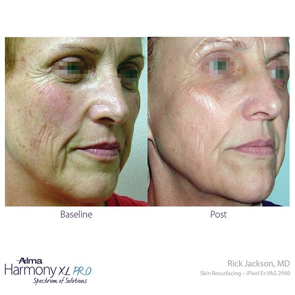 before and after skin resurfacing 2