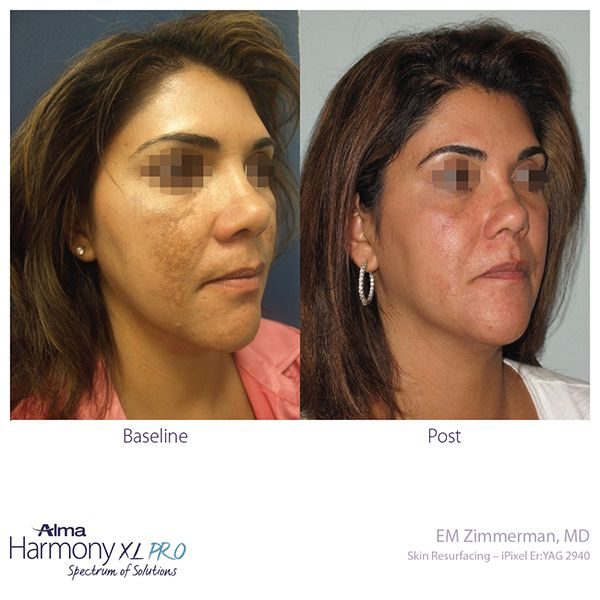 before and after skin resurfacing ipixel laser 4