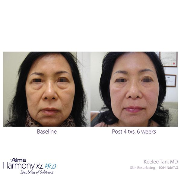before and after clearlift laser at medispa