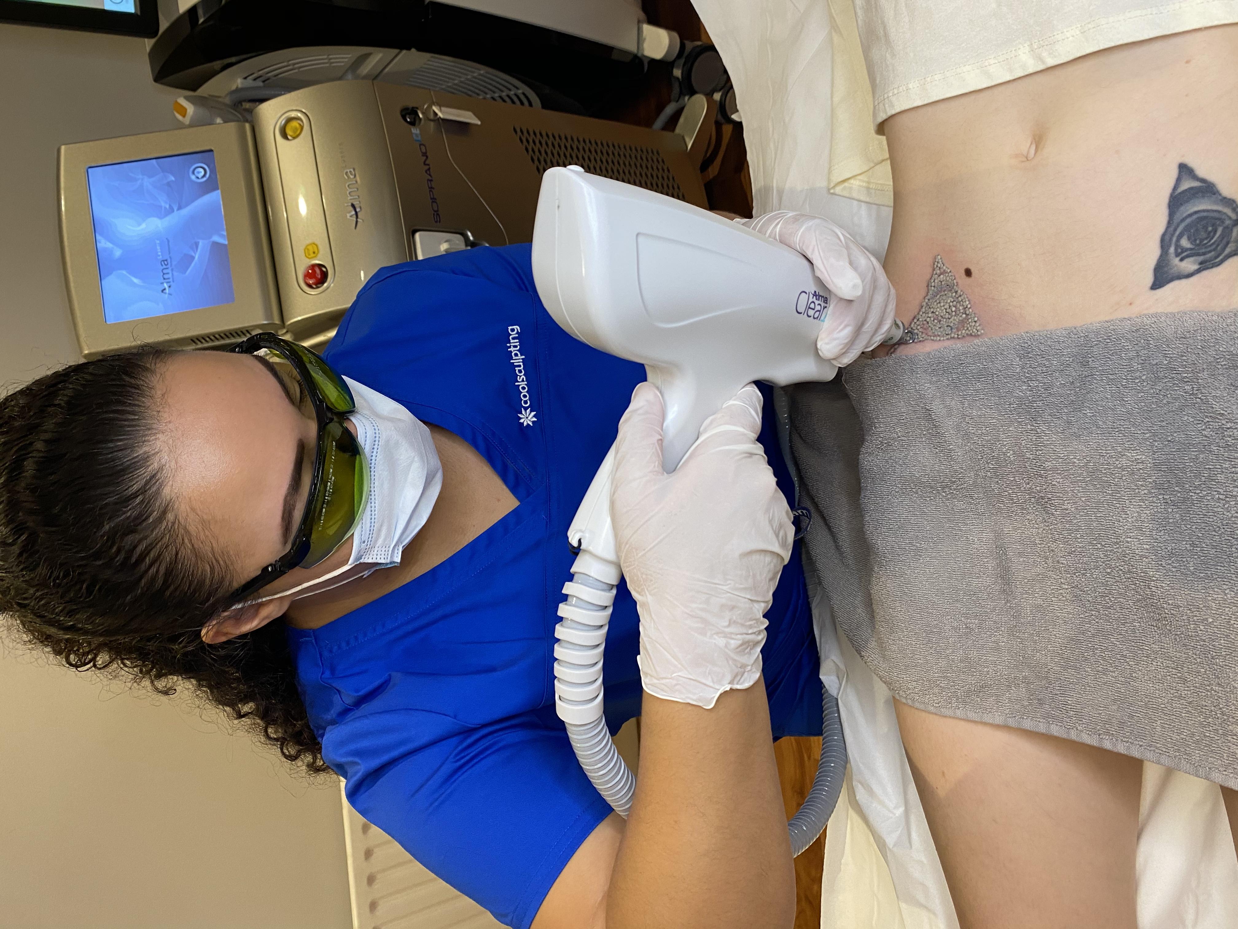 laser tattoo removal chiswick Hogarth medispa