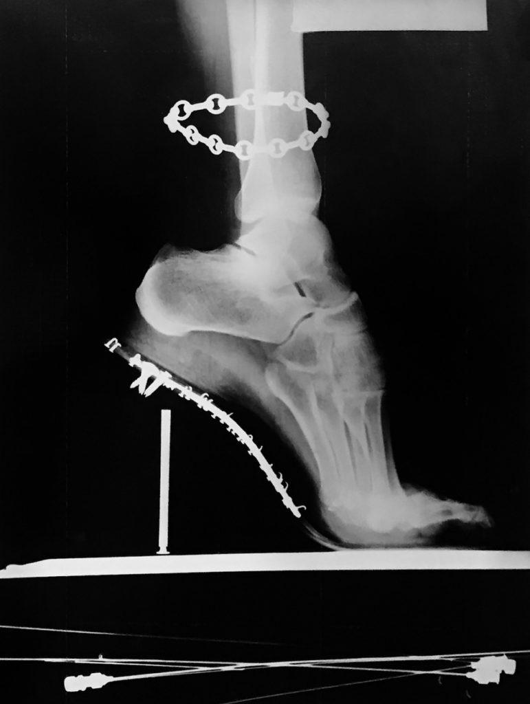 Helmut Newton, X-Ray