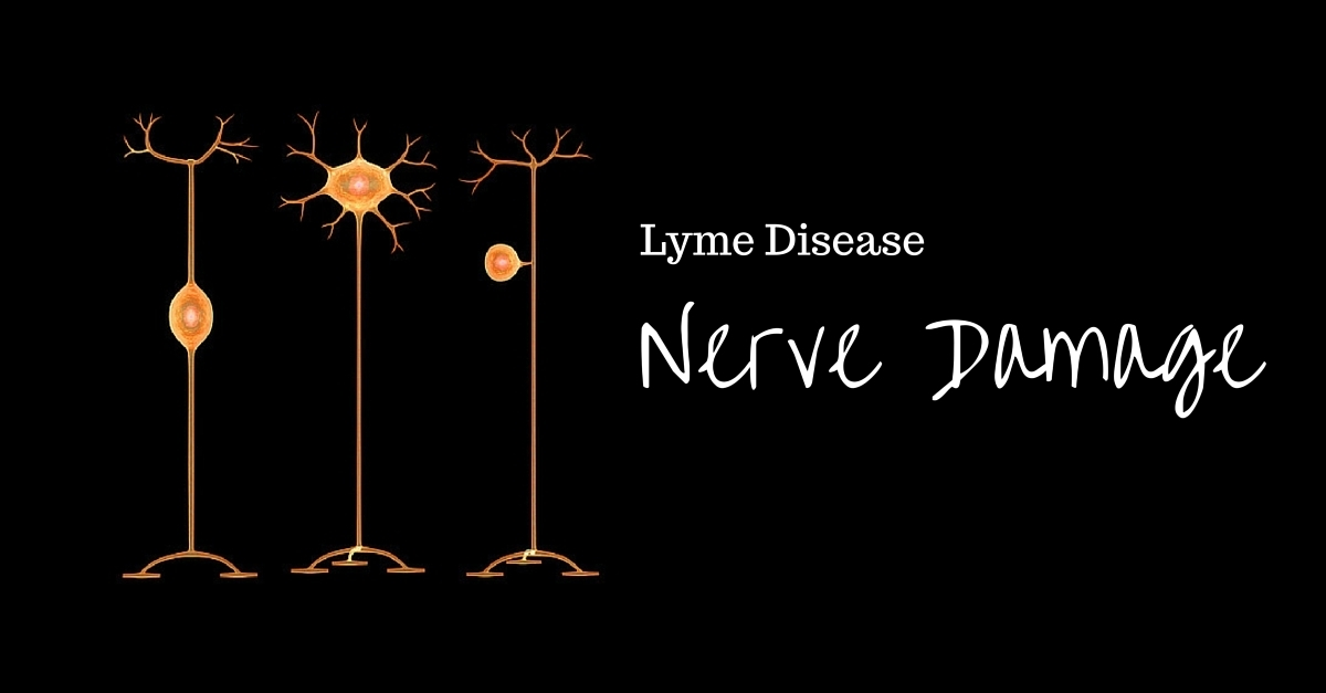 Neuropathy in a Lyme disease treatment image from Marty Ross MD