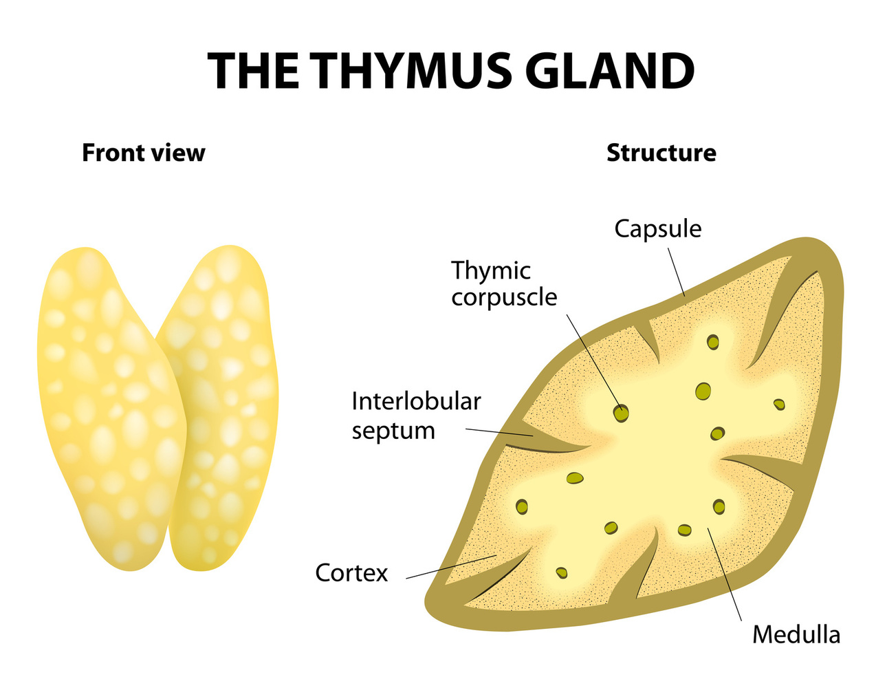 Thymus gland in Lyme disease by Marty Ross MD image.
