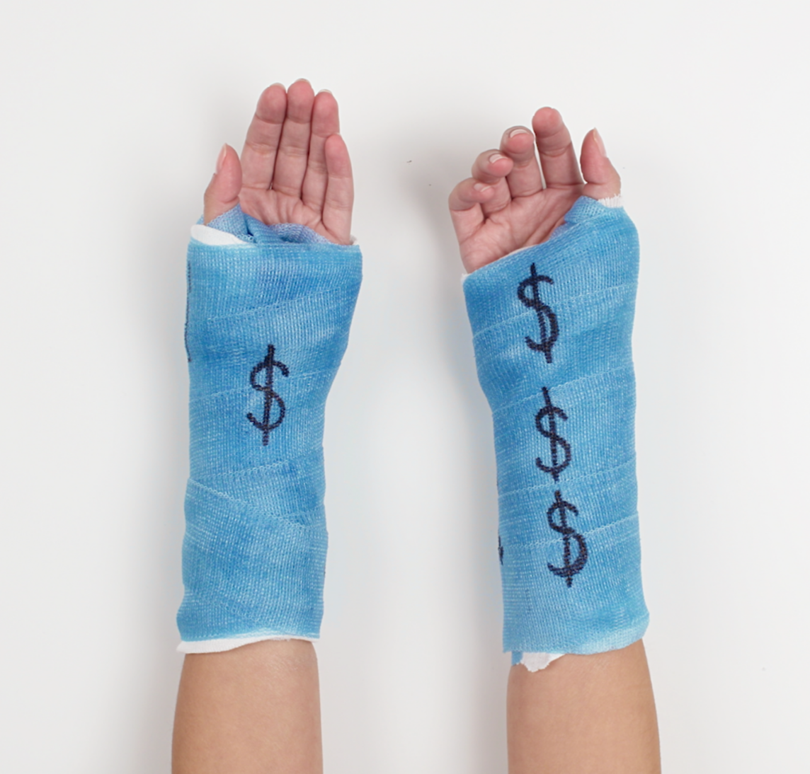 Two arms both in a blue cast with dollar signs drawn on the cast
