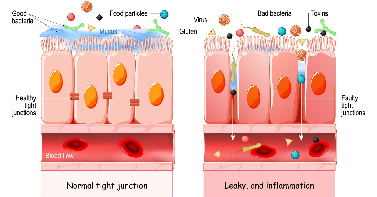Leaky Gut Syndrome in Lyme Disease Image