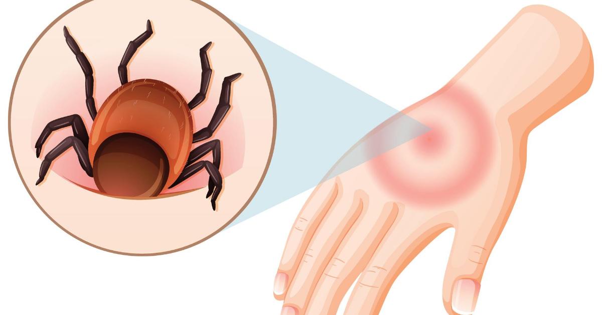 acute tick bite treatment image