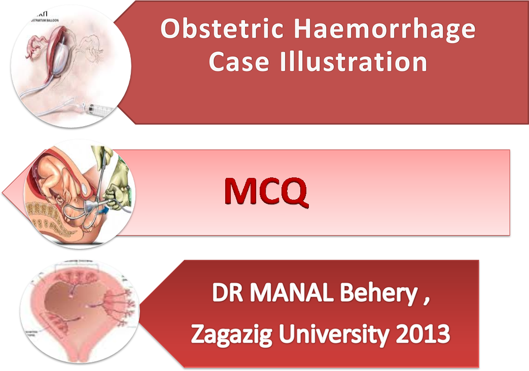PPT – Obstetric hemorrhage case scenario and MCQ for