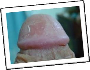 Hongos genitales masculinos como curarlos