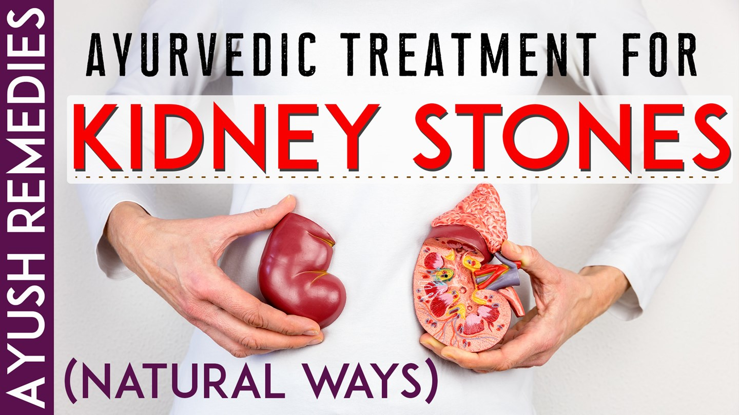 PPT – Best Way to Pass a Kidney Stone without Surgery Naturally at