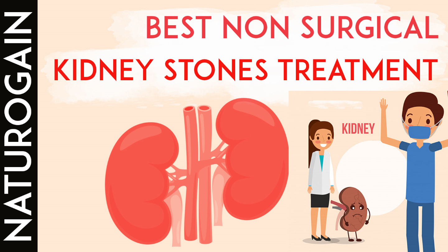 Ppt Best Non Surgical Treatment For Kidney Stones Without