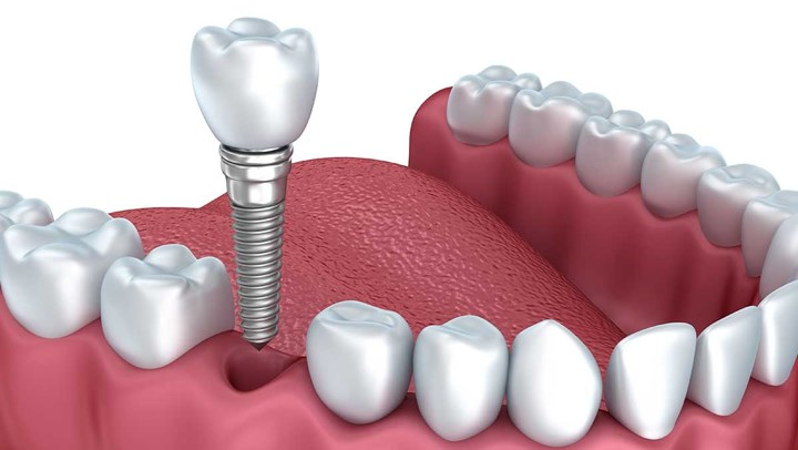 Ppt Why You Should Look Into Dental Implants Powerpoint