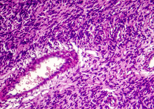 HudsonAlpha researchers identify potential therapeutic target for synovial sarcoma