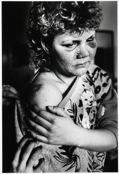 Jane recalled the night she was beaten: