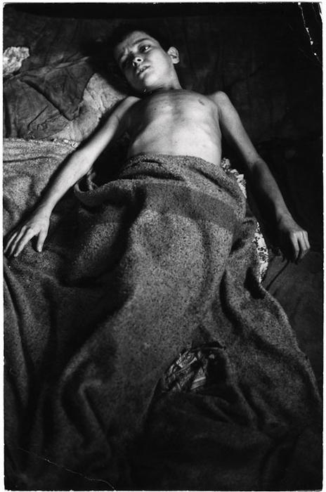 [Flavio da Silva resting after an asthma attack, Rio de Janiero]