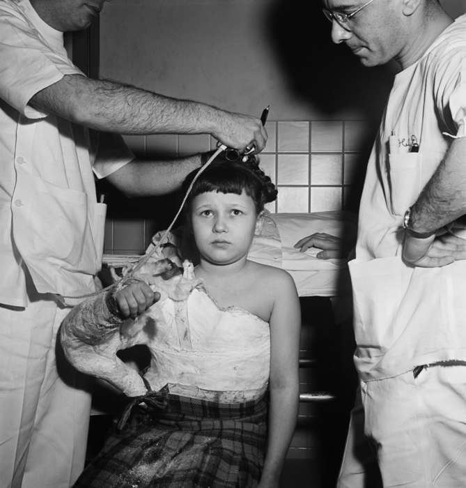 [Physicians removing a young patient's body cast, Jewish Hospital for Joint Diseases, East Harlem, New York]