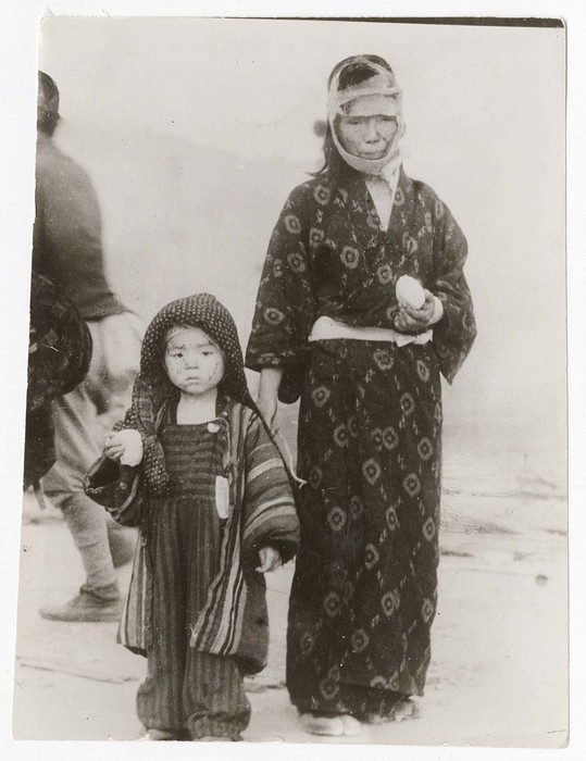 [Dazed boy, his face cut by glass, standing with his injured mother holding rationed rice balls, following the atomic bombing of Nagasaki]