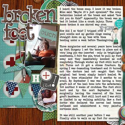 Traceys-breaks-her-foot