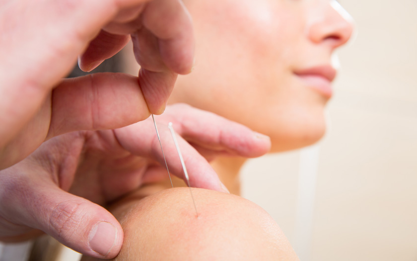 Acupuncture on a shoulder