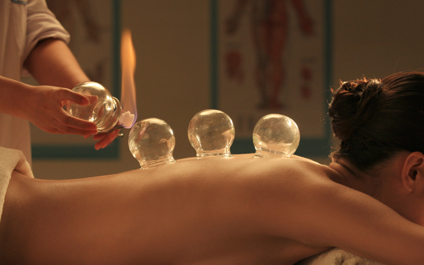 Cupping - Mend Family Acupuncture in Los Angeles, CA