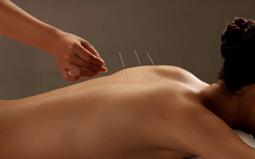 acupuncture treatment on back pains