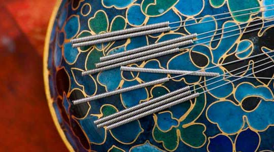 Surprising benefits of acupuncture