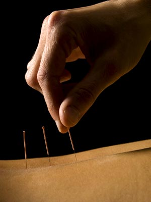 Acupuncture Guidelines -