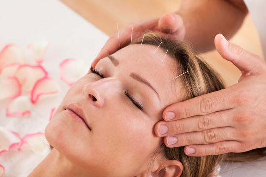 Acupuncture what to expect