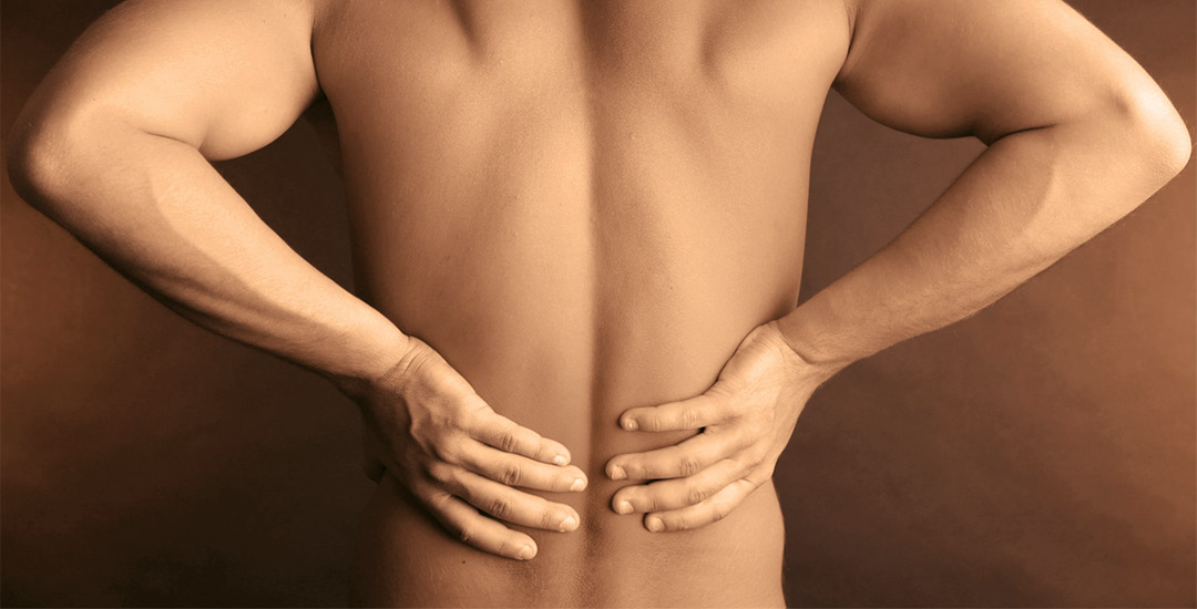 Back pain acupuncture cupping