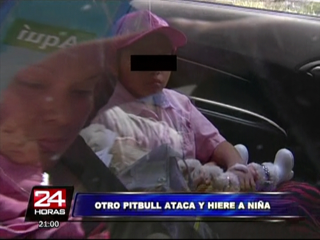 Niña de siete años es nueva víctima de ataque de pitbull en Barrios Altos