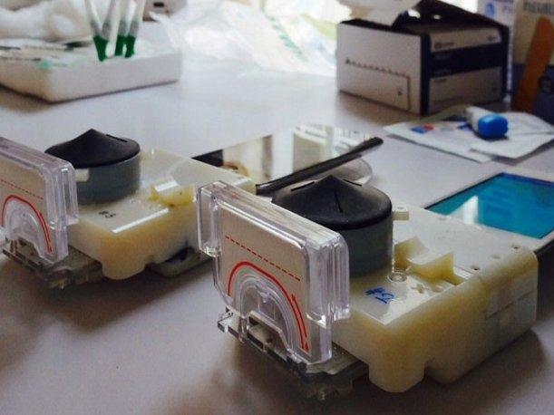 Tendencias en Línea: desarrollan gadget que puede detectar VIH y sífilis
