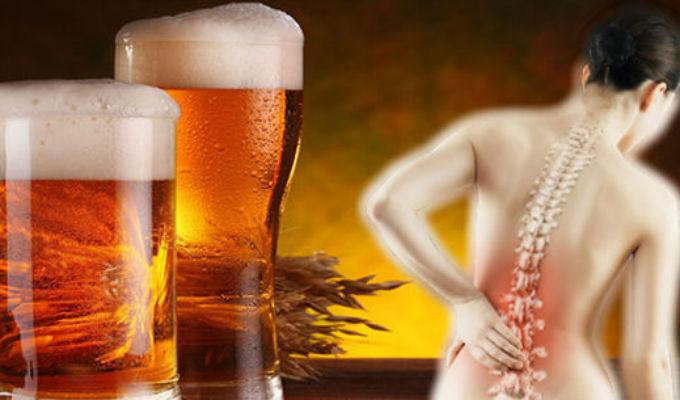 Estudio revela que consumo de cerveza ayuda a prevenir la osteoporosis