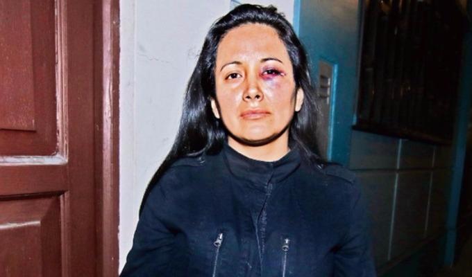 Mujer acusa a coronel de la FAP de golpearla brutalmente en Miraflores