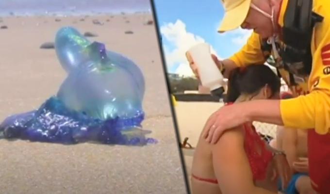 Medusas venenosas pican a más de 3 mil personas en Australia