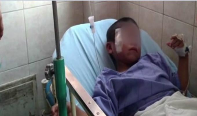 Puente Piedra: detienen a sujeto que golpeó y mordió a su hijo