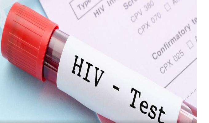 Pakistán: 90 personas fueron contaminadas con VIH por médico que tiene el virus