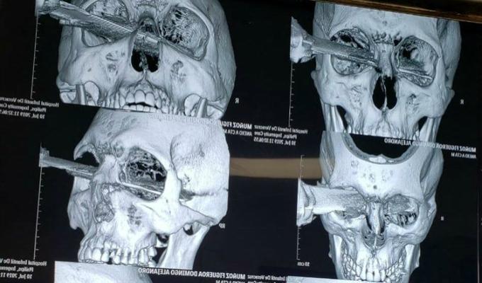Hombre termina con un cuchillo en la cara por pelear lugar de estacionamiento