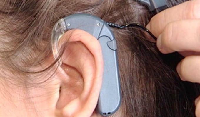 Santa Anita: Depincri investiga robo de implante auricular a niña con sordera