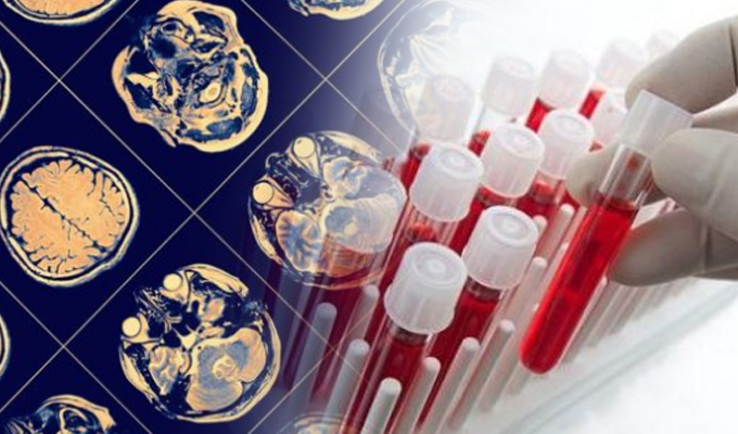 EEUU: test de sangre detecta el Alzhéimer 20 años antes de los síntomas