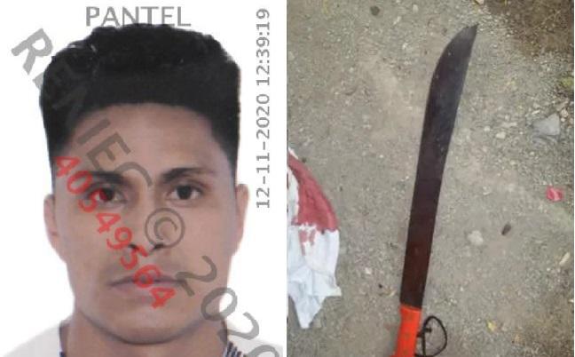 Mujer es atacada a machetazos tras descubrir a su pareja violando a su hija