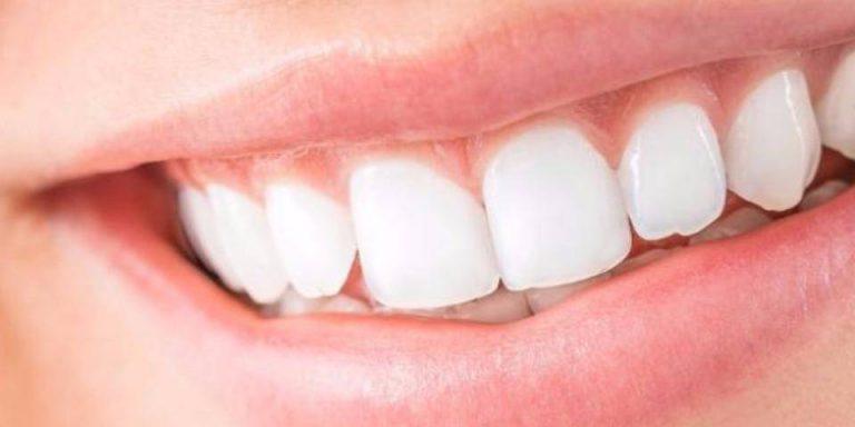 implante dentário com a bradesco